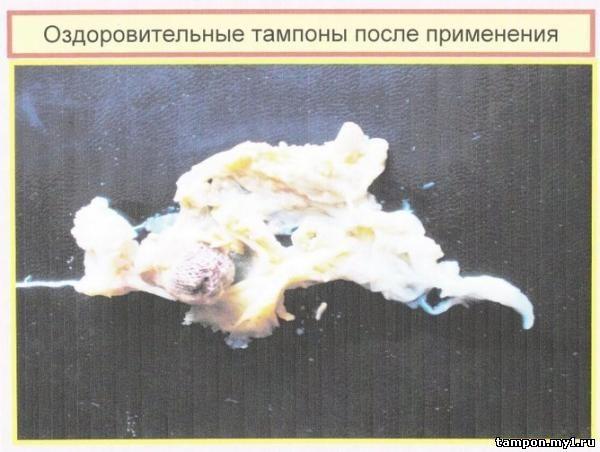 Лечебно-профилактические тампоны Beautifule Life,1 шт - Интернет-магазин - Секреты Лан